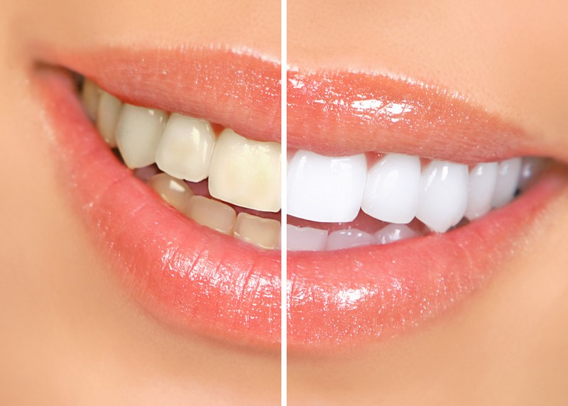teeth whitening services Westerly, RI